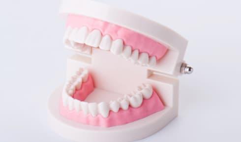 歯の状態によっては矯正期間が長くなることがある